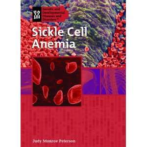 Sickle Cell Anemia (Genetic & Developmental Diseases